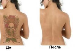 Удаляем татуировку лазером
