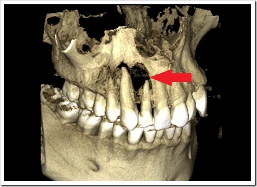 Выявление патологий в челюсти