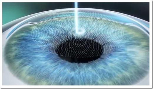 Методика лазерной коррекции зрения LASIK