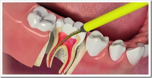 Удаление нерва из зуба: оптимальное решение