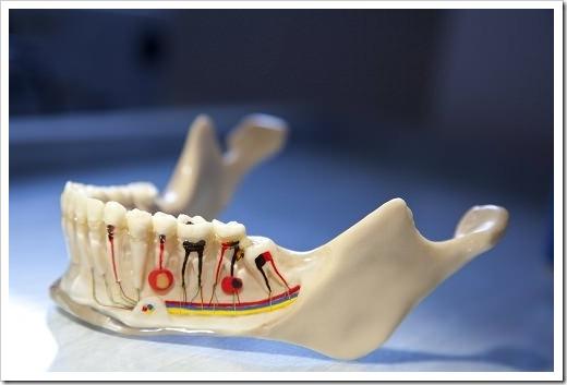 Будет ли болеть зуб после удаления нерва?